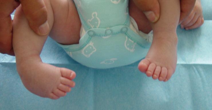 Piede torto nel neonato