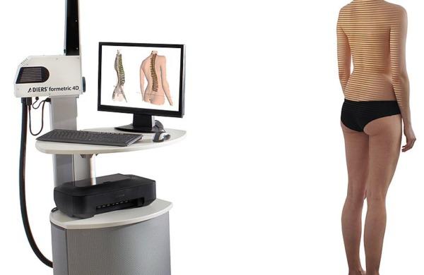 Formetric, una nuova frontiera per diagnosi e cura delle patologie vertebrali