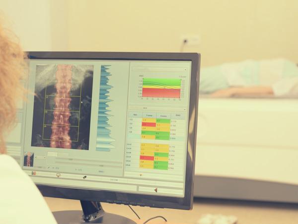 L'osteoporosi, malattia silenziosa: quando prevenire è vitale